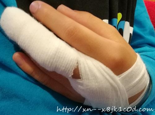 指を挟んだ!痛い時は何科で処置を受ければいい?